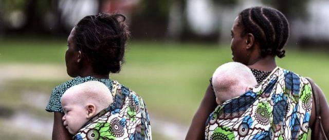 TANZANIE : 7 PERSONNES ACCUSEES DE SORCELLERIE BRULEES VIVES